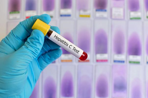 Hepatita C este discretă. De ce e important să o depistezi la timp