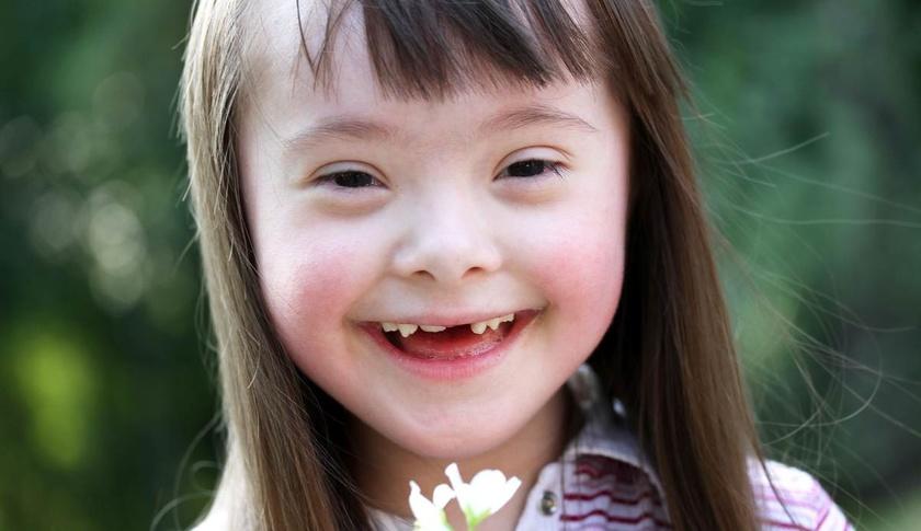 Copiii diagnosticați cu sindromul Down vor beneficia de însoțitor