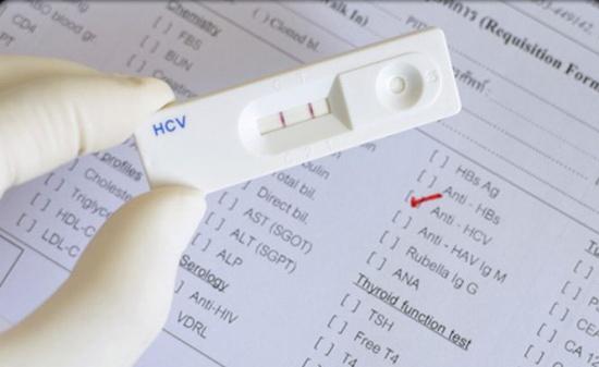 Analize gratuite pentru depistarea Hepatitei C