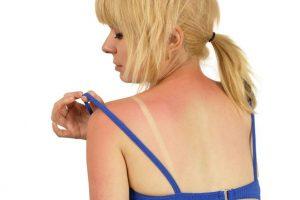Piele arsă la soare? Iată ce greșeli trebuie să eviți pentru a te vindeca rapid!