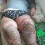 Drama unui arădean bolnav de elefantiazis. Refuzat de spitalele din țară