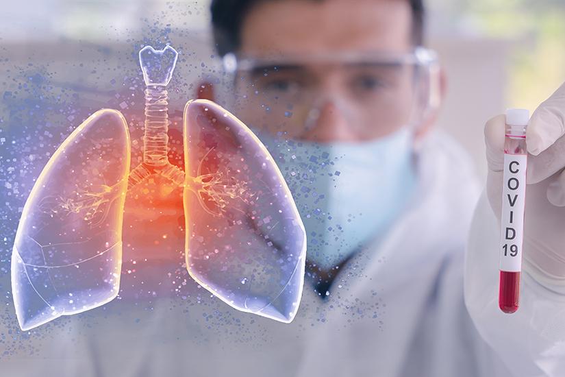 65 de noi cazuri de coronavirus în Timiș. Bilanț negativ la nivel național