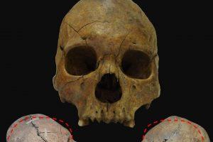 Două cranii de gepizi deformate artificial, descoperite în situl arheologic de la Freidorf