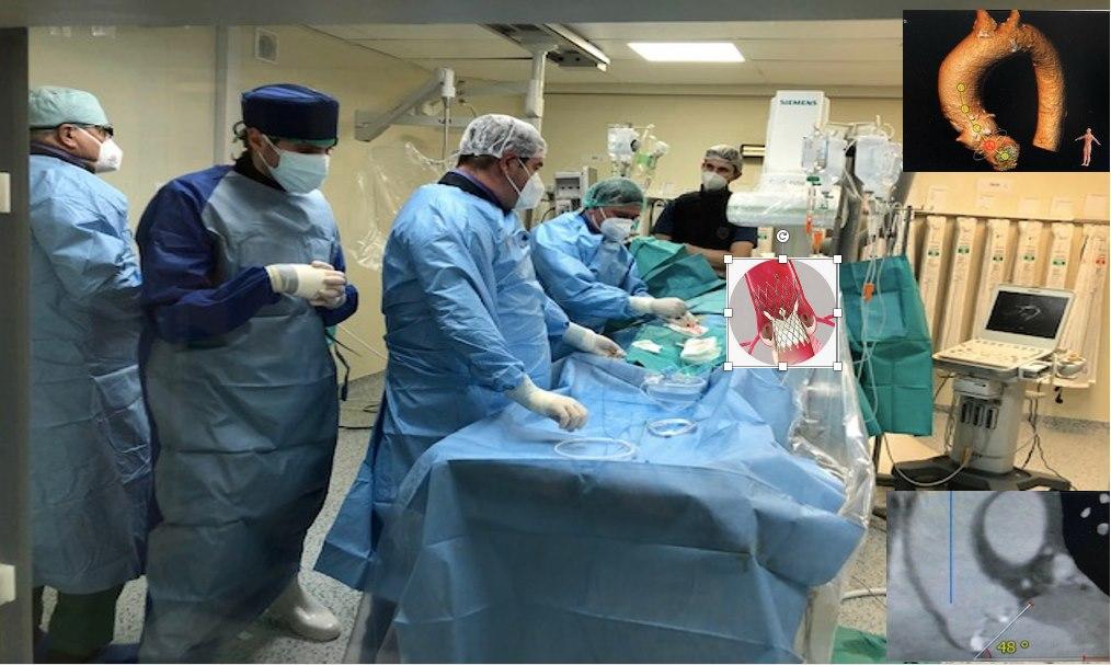 Operații de zeci de mii de euro, efectuate gratuit la Institutul de Cardiologie din Timișoara