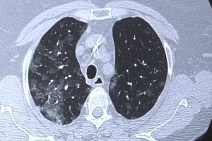 Platformă unică în România pentru second opinion în cazul pacienților cu boli interstițiale pulmonare